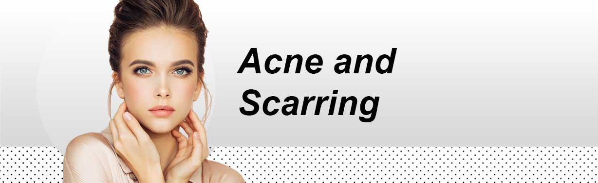 Acne-and-Scarring-Header-Mobile