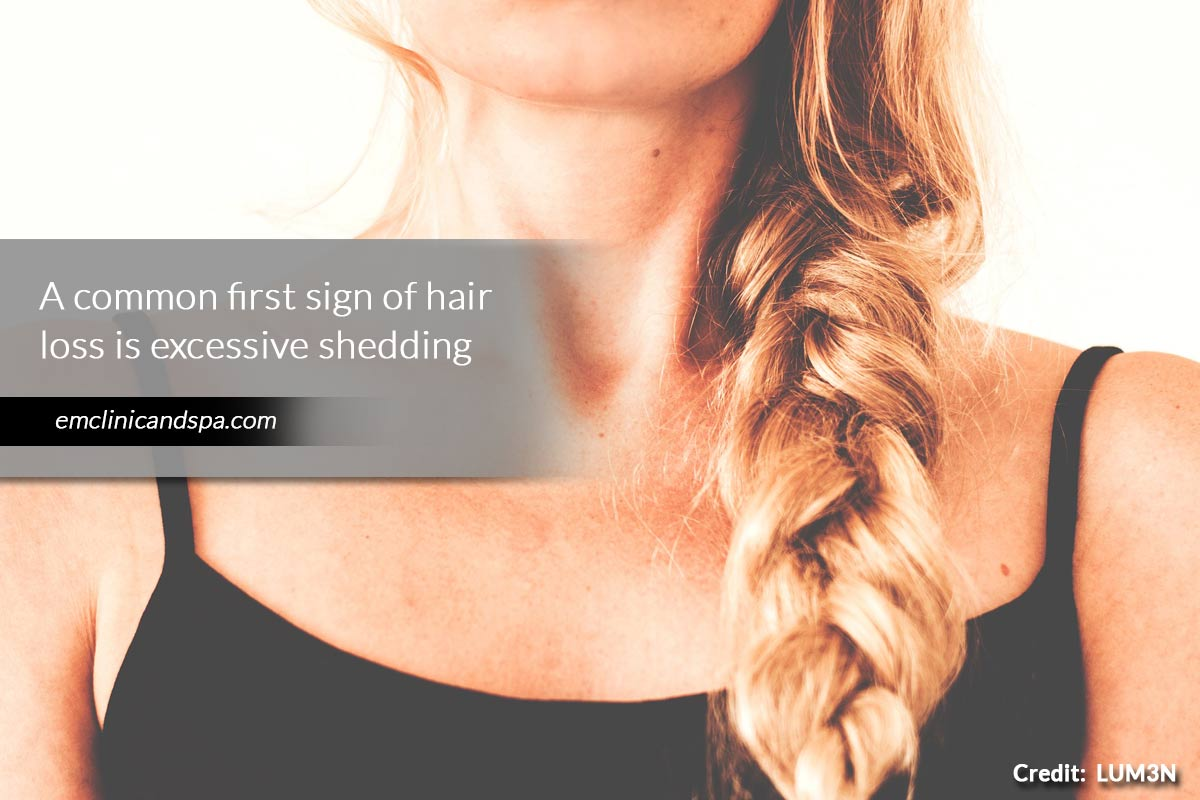 common first sign of hair loss