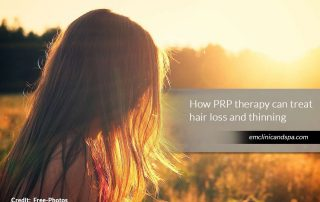 How-PRP-therapy-can-treat-hair-loss-and-thinning