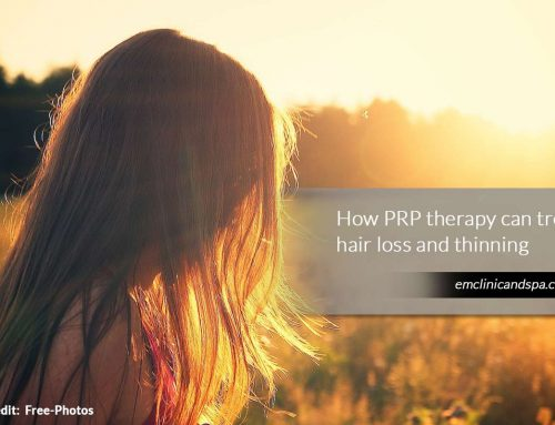 Treating Hair Loss with PRP