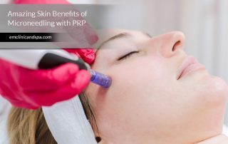Amazing-Skin-Benefits-of-Microneedling-with-PRP