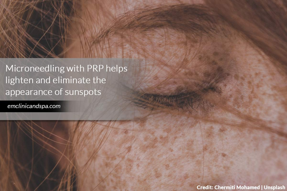 Microneedling with PRP helps lighten and eliminate the appearance of sunspots