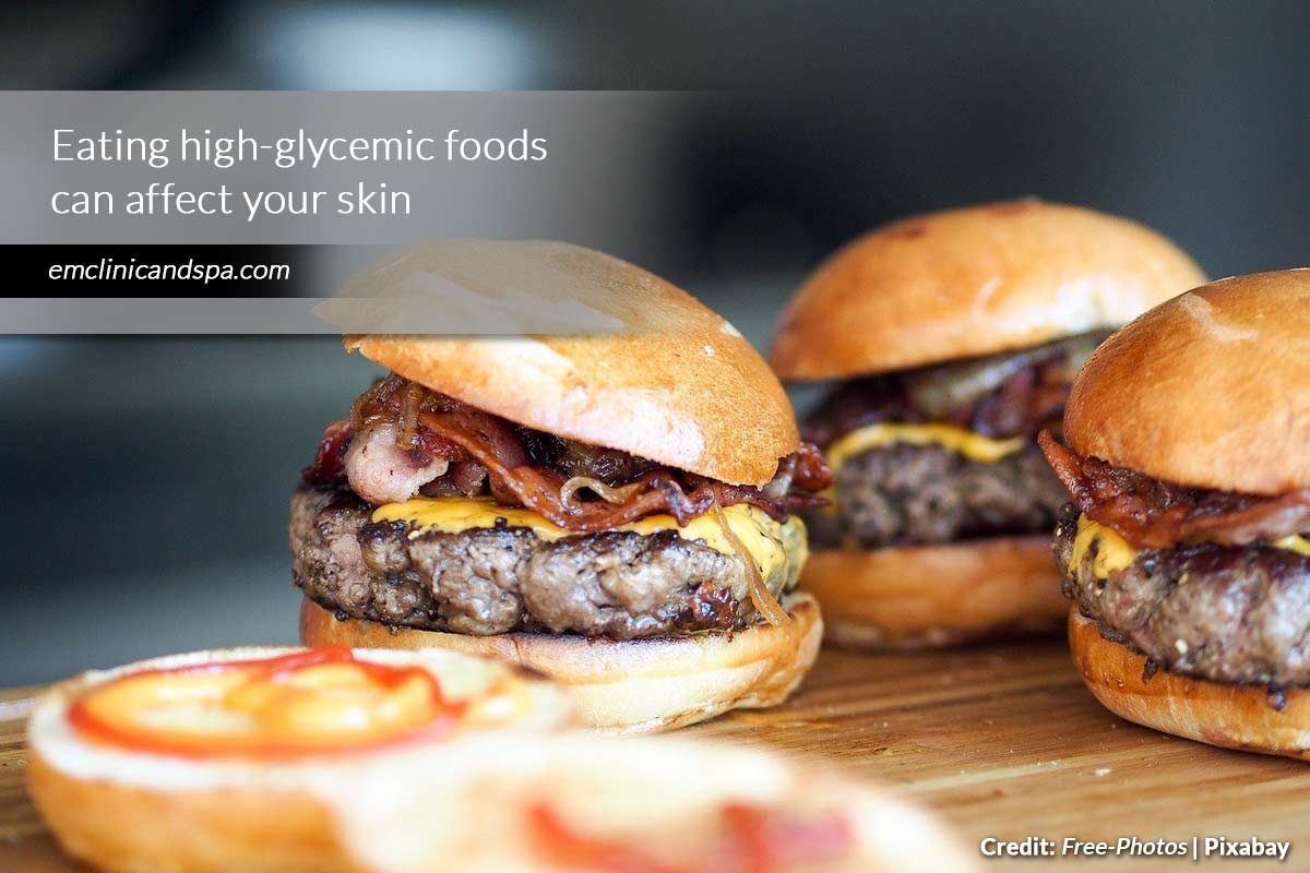 Eating high-glycemic foods can affect your skin
