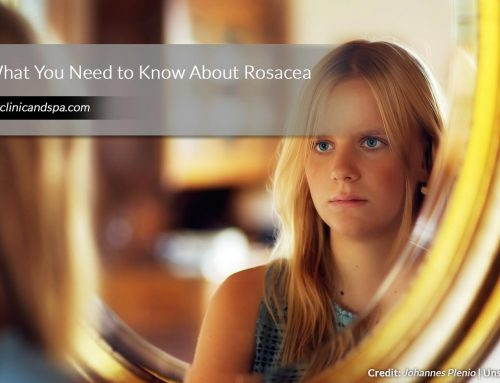 What You Need to Know About Rosacea